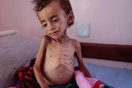 خطر مرگ جمعی در کمین میلیون ها کودک یمنی